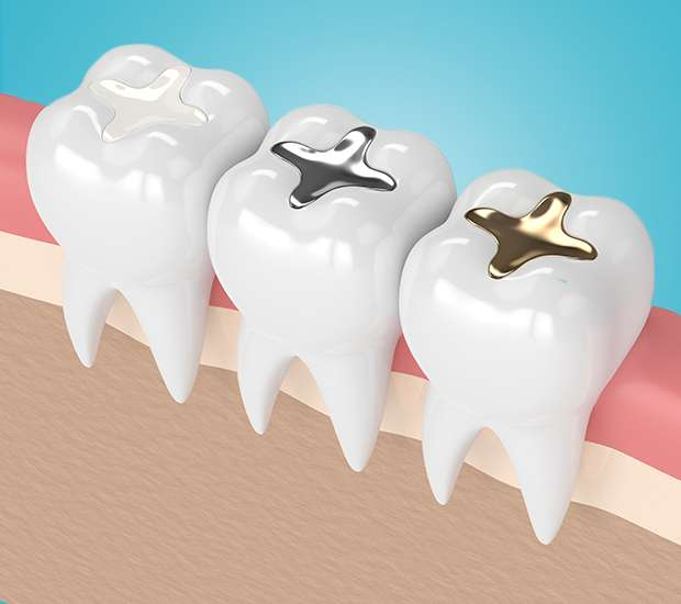 Palm Desert Composite Fillings