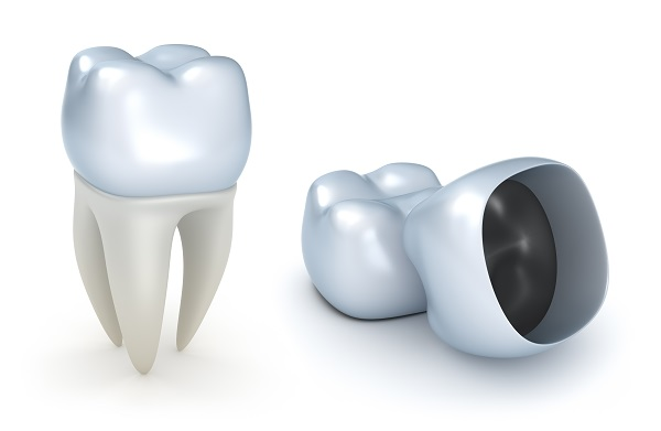 Do Implant Crowns Ever Fall Out?