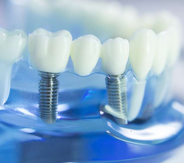 Palm Desert Dental Implants